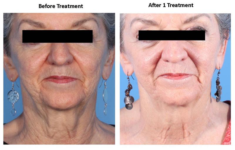 Facial-Dermapen-Treatment-2