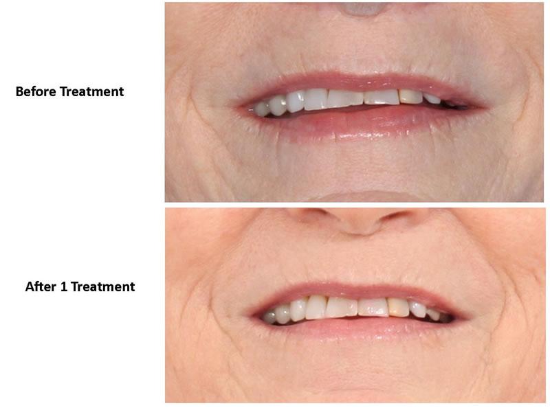 Facial-Dermapen-Treatment