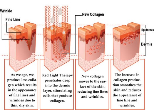 LED-light-therapy-red-light-collagen