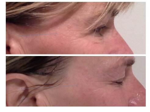 voor en na ogen rechts structuur josine